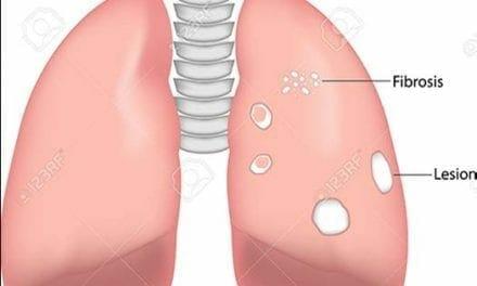 Niños y el personal en un preescolar podrían haber sido expuestos a la tuberculosis