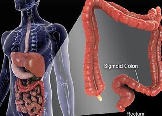 Aumentan las tasas de cáncer colorectal entre la generación X y los milenios